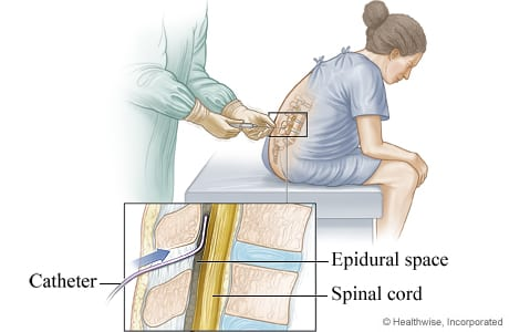 an illustration of a woman getting an epidural and where the catheter is placed in the back.