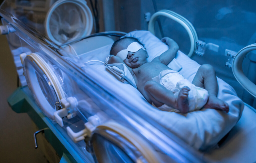 Beautiful latin american newborn baby in incubator getting treated for jaundice
